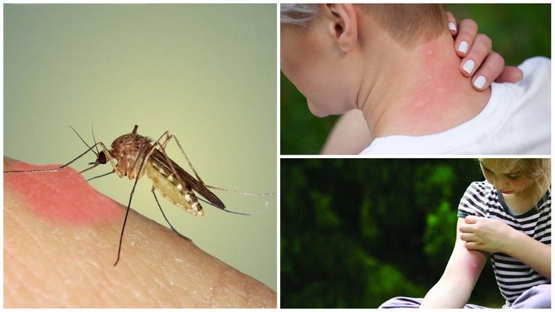 Комары, кроме болезненных укусов могут переносить различные инфекционные заболевания