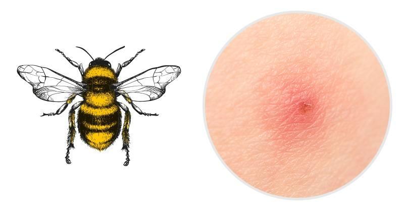 При укусе пчелы в тело человека попадает яд, вызывая кратковременную боль и жжение