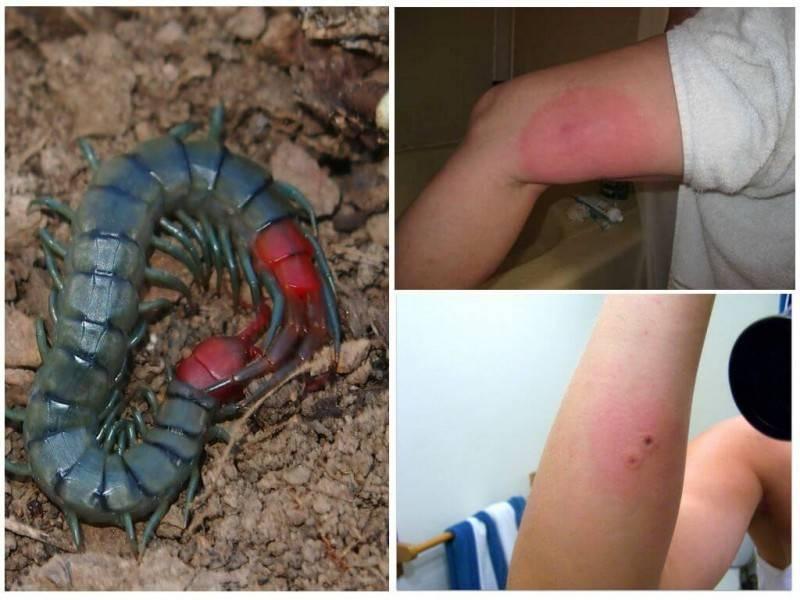 Сколопендра - агрессивный хищник, укус которого вызывает сильную боль, жжение, эритему и отек