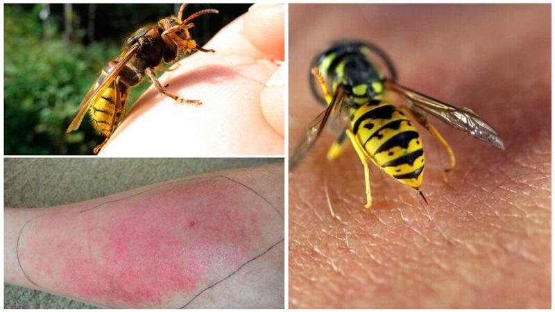 Укус осы очень болезненный, может вызвать отеки и раздражения на коже