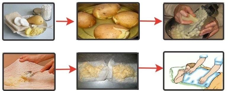Компрессы с печеной картошкой используют для лечения кашля